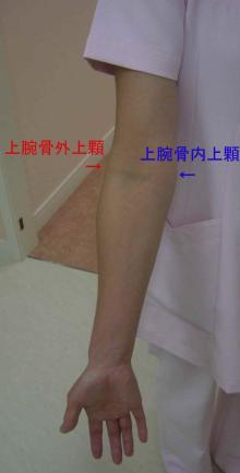 渡部さん右上肢