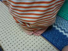 足指が『えんどう豆』のようです。