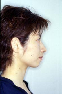 徳島の矯正歯科治療専門医院-術後横顔