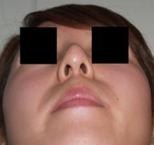 日本美容外科学会認定専門医Dr.石原の診療ブログ~いろんなオペやってます~-他院隆鼻 下から