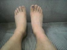 サロマ腫れた足