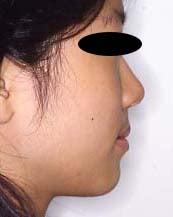 徳島の矯正歯科治療専門医院-術後横顔拡大