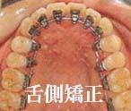 徳島の矯正歯科治療専門医院-リンガル