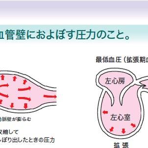 生活習慣病 ~高血圧パート1~の画像