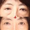 目の下のたるみの原因と、たるみ専門店ココ・ラ・ボーテでの改善例 |入間の画像