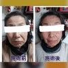 むくみをしっかり取ります≪尼崎の小顔フェイシャル&黄土よもぎ蒸し≫の画像