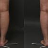 『ふくらはぎ』と『太もも』のベイザー脂肪吸引・アラフォー女子・BMI 22・医療ダイエットの画像