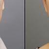 フェイスラインをシャープに・アラサー女子・BMI 22・頬と顎のベイザー脂肪吸引・医療ダイエットの画像