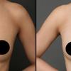 コンデンスリッチ豊胸・20代女性・BMI 19・太もものベイザー脂肪吸引の画像