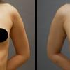 『乳房拡張器』を併用した脂肪豊胸・20代女性・BMI 19・『太もも全周』のベイザー脂肪吸引の画像