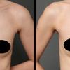 『乳房拡張器』を併用したコンデンスリッチ豊胸・30代女性・BMI 17・太もものベイザー脂肪吸引の画像