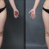太もものベイザー脂肪吸引・20代女性・BMI 22・コンデンスリッチ豊胸・医療ダイエットの画像