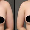 2回目コンデンスリッチ豊胸・20代女性・BMI 21・お腹と太もも前面のベイザー脂肪吸引の画像