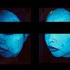 ボトックスの効果で本人も驚きの結果の画像