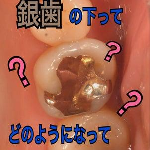 銀歯の下は…の画像