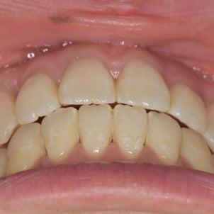 前歯同士の噛み合わせについての画像
