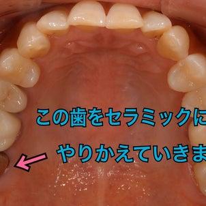 銀歯からオールセラミックになるまでの画像
