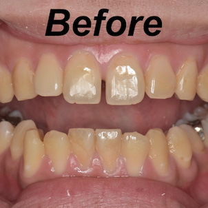 前歯の虫歯治療についての画像