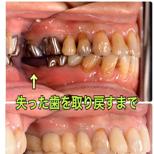 インプラント治療と付着歯肉移殖術の画像
