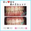〜安心❤️安全 歯のエステで笑顔美人〜の画像