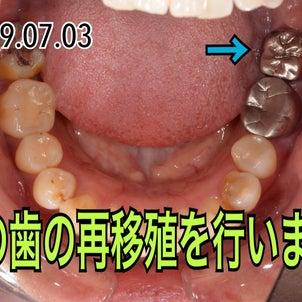 歯の再移殖についての画像