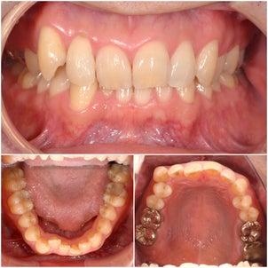 虫歯治療〜矯正治療の画像