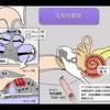 ストレスがなぜ突発性難聴を起こすといわれるのか?の画像