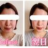 2年4か月経過後のお顔の変化と遠隔小顔矯正やってみたシリーズ♪パート3【東京から岡山】の画像