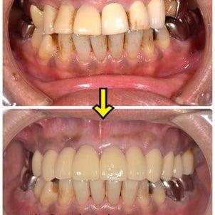前歯のオールセラミックの画像