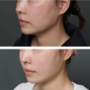 口元のたるみ改善・アラサー女子・BMI 19・頬と顎のベイザー脂肪吸引の画像