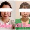 2年5か月経過後のお顔の変化♪遠隔小顔矯正でここまで変わる【東京から岡山】の画像