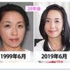 【顔筋のプロが20年実践マル秘テク】ほうれい線の消し方、教えます!の画像
