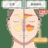 副鼻腔炎や蓄膿症の改善をするにはの画像