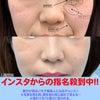 【#症例】#目の下の切らないたるみ取り #脂肪注入 【#美容整形】【#若返り】の画像