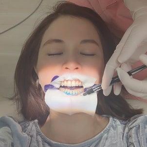 歯科クリニックでホワイトニングの画像
