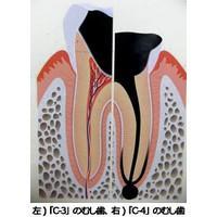 歯科医に聞く。むし歯の「C-4」ってなに?