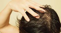 亜鉛は抜け毛に効果があるのか?