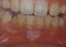 歯科医が教える。誰もがすぐに自分でできる口内炎ケアはコレ!