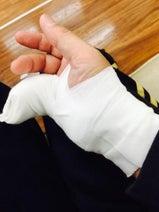 IZAM 階段で転び小指を剥離骨折「一瞬、反り返りました」