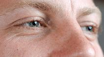 視力が右1.5、左0.5…左右の視力の差が大きい原因は?