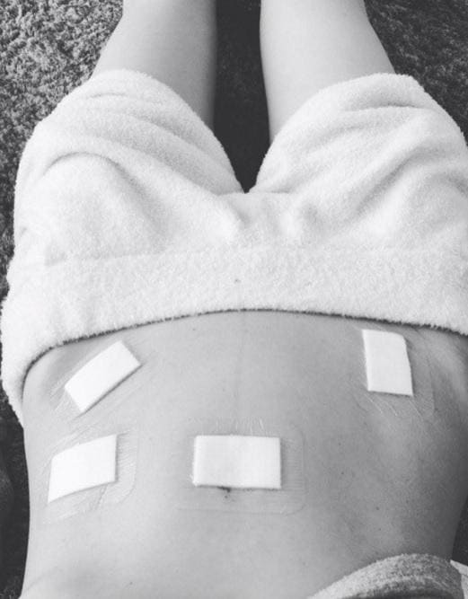木口亜矢 1ケ月前に手術、腹部に穴「絶不調」吐露にエール多数