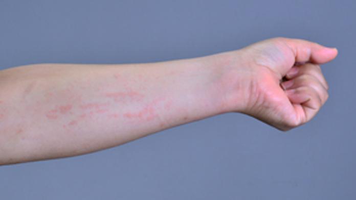 蕁麻疹 原因 ストレス 疲れ