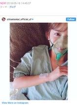 岡井千聖、手術の成功を報告「無事です!!綺麗になってるかな??」