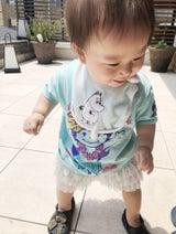 東尾理子、次女のアレルギー検査の結果を報告「上手くお付き合いしていける様に頑張ります」
