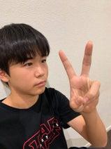 鈴木福、指を骨折して1か月が経過「まだちょっと痛い」