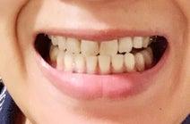 くわばたりえ、歯列矯正の経過を報告「綺麗にするのに3年かかる」