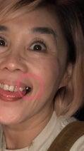 野沢直子、海外の高額すぎる医療費にめまい「歯抜けばばあのまま貫くことに」