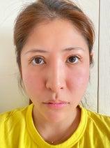 内山信二の妻、急性胃腸炎になり見舞われた症状に不安「治んなかったらどうしよう」