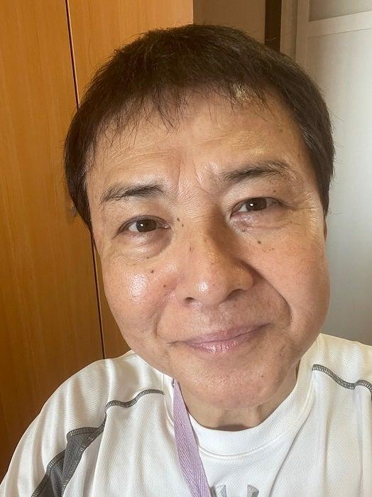 渡辺徹、大切な治療を受けたことを報告「調子はすこぶる良いです」