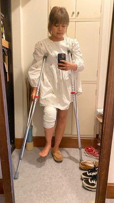 あいのり・クロ、約4か月前に負傷した膝の怪我を回想「事実を受け入れられませんでした」
